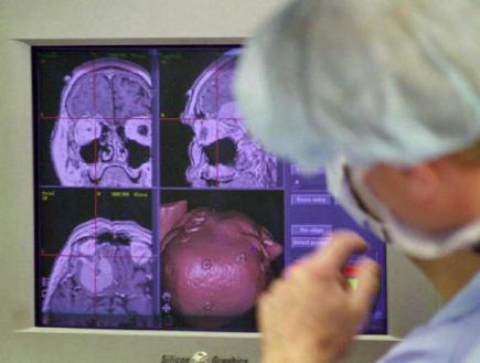 http://i3.cn.cz/14/1124884627_mozek-operace.jpg
