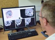 Nemocnice Na Homolce v Praze slaví 25. výročí léčby gama nožem v Česku. Přístroj, který umí velmi přesně ozářit například nádory v mozku, byl v nemocnici instalován 26. října 1992. Na snímku pořízeném 26. října 2017 lékař na monitoru sleduje zobrazení míst v hlavě, která jsou určena k ozáření.