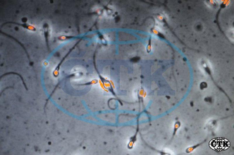 Vědci našli v Barmě nejstarší spermii na světě