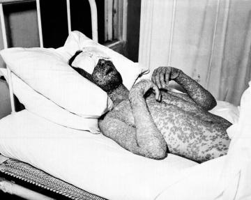 Muž nakažený neštovicemi